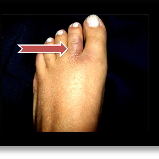 how-to-treat-an-injured-or-broken-toe-by-buddy-taping