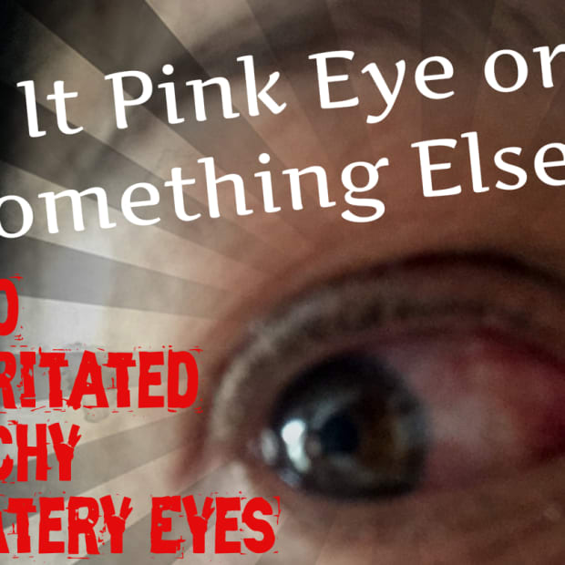 red-irritated-itchy-watery-eyes-is-it-pink-eye-or-something-else