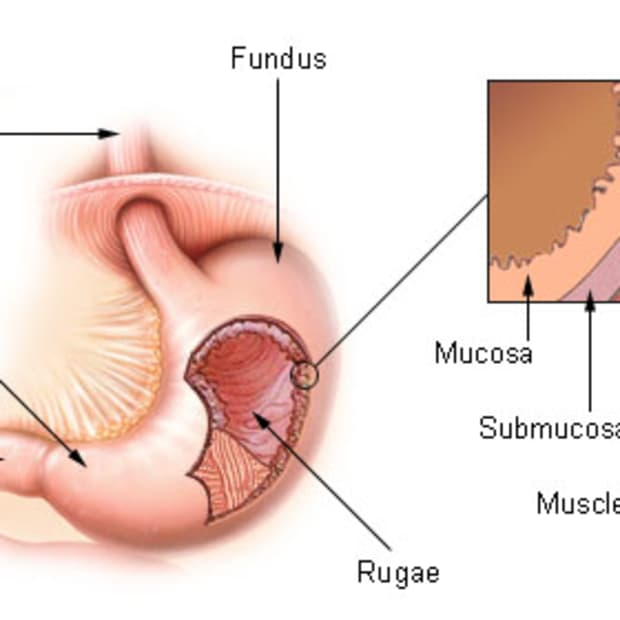 how-to-cure-gastritis