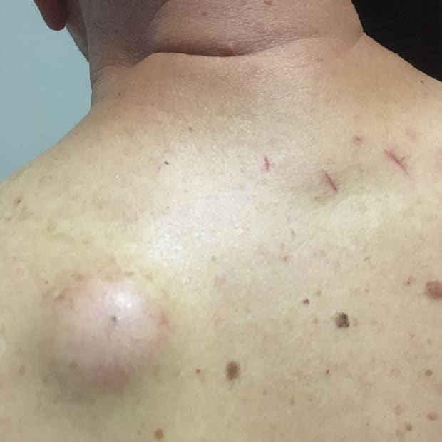 treatment-for-my-sebaceous-cyst