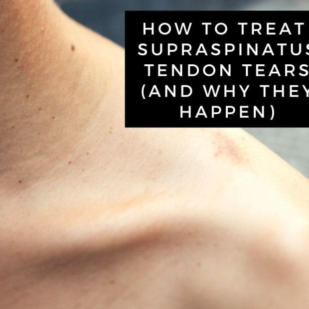 supraspinatus-tendon-tear