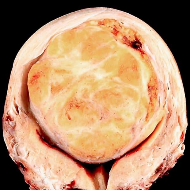 5-main-types-of-uterine-fibroids