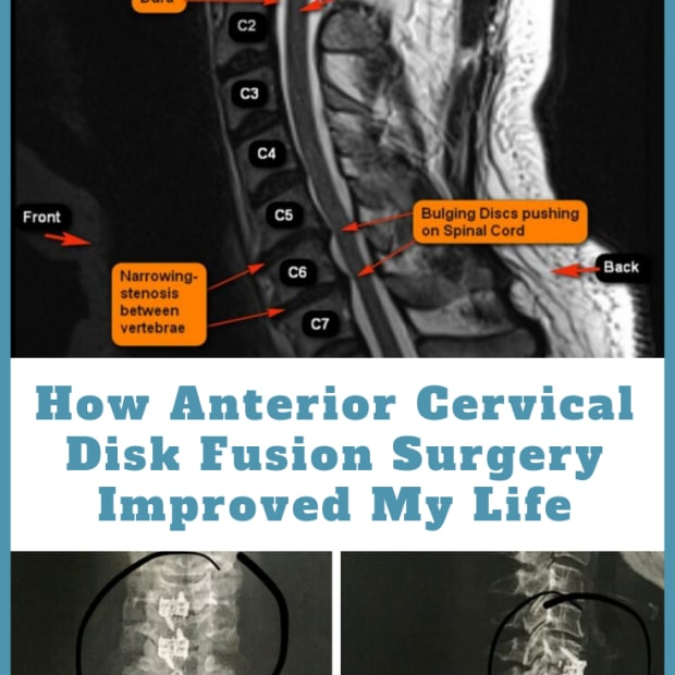 anterior-cervical-disk-fusion-surgery-acdf-my-experience