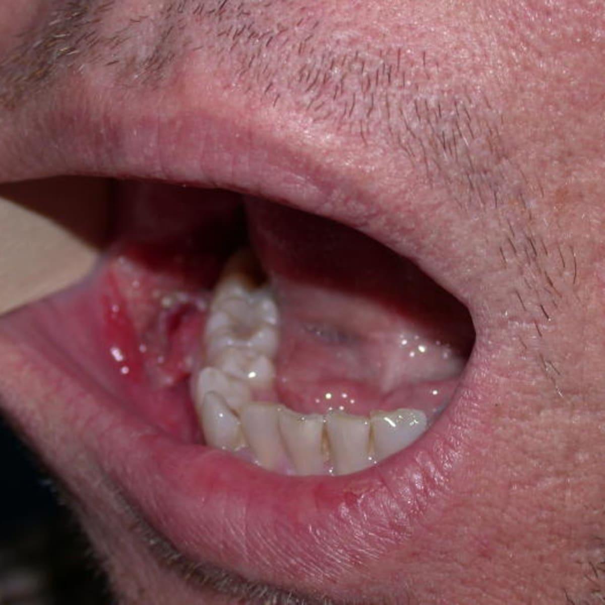 hpv virus lip que es papiloma viral
