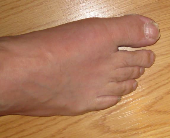 what-to-expect-the-first-time-you-have-gout