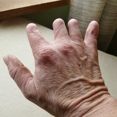 Back of right hand affected by symbrachydactyly