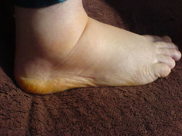This is a foot swollen in a state of edema.