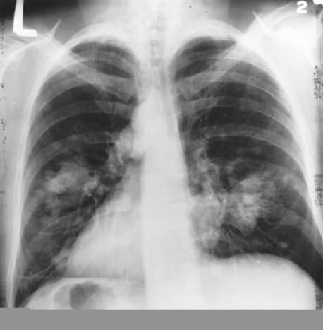 X-ray of cancer.