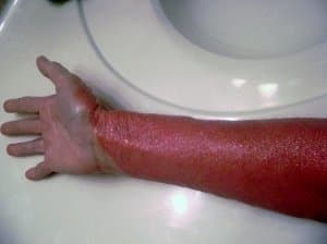 Topical Steroid Withdrawal/Red Burning Arms and Hands