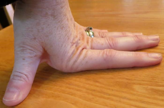 Hypermobile finger joints