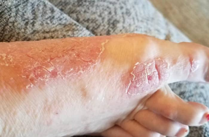 My foot during one of the bad times. All of the little bumps on the top of my foot were the beginnings of more sore patches.