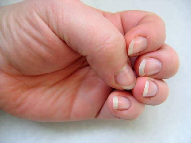 Natural nails will be more fragile at first and cuticles may get ragged.