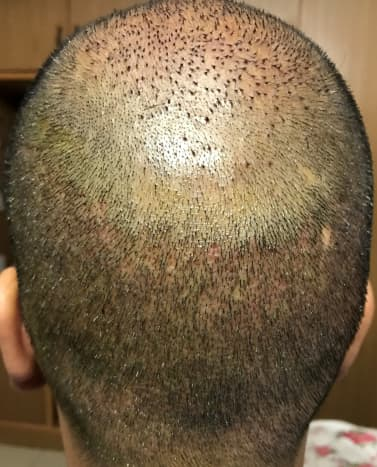The donor area and the vertex region. As you can see it has healed fairly well, but we can still see the reddishness. The hair in the vertex region is not growing at the same rate as the donor region, but hoping HT and PRP will help