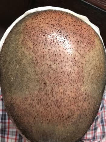 This is how your scalp will look on the 2nd day if you follow the directions given by the doctor