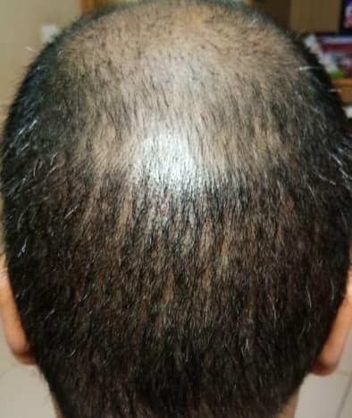 Vertex region - Almost all the transplanted hair has fallen off