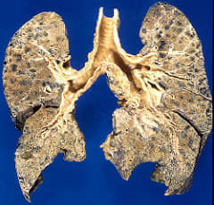 Chronic Diseases Of the Lungs. This slide shows Centrilobular Emphysema.