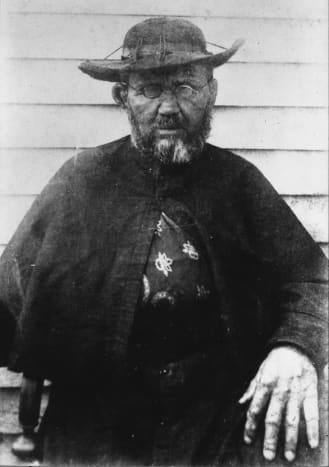 Fr. Damien in his final months; his injured right arm is in a sling.