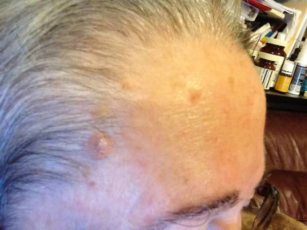 Jul 31, 2015. Notice large pink circle in the hairline, and smaller irregular shaped raised area, which was raised and rough. Notice multiple lesions on right forehead.