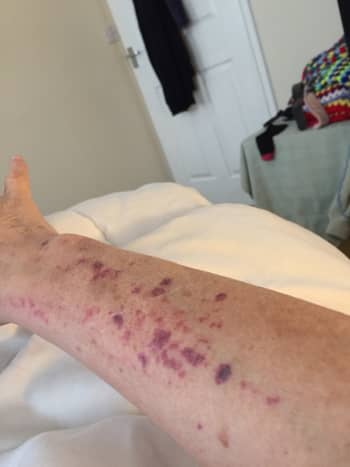 Throughout my life, I have had many problems because I bled a lot. If I cut myself, it would take a long time to stop the bleeding. My legs, arms and stomach were full of bruises even though I knew I had not injured myself.
