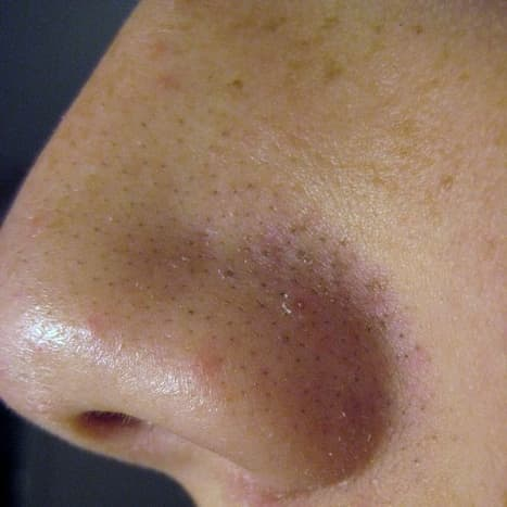 A male with blackheads on nose