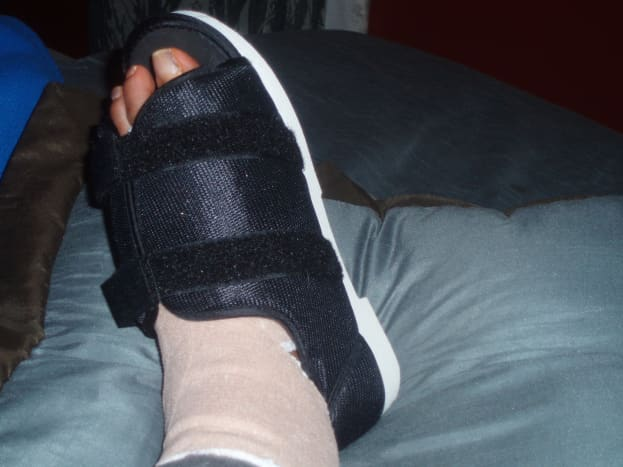 Image of my foot after bunion surgery- surgical shoe