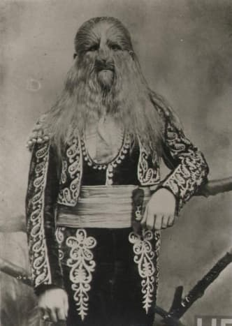 Stephan Bibrowsky (1890-1932), known as Lionel the Lion-Faced Man. Sideshow performer for Barnum & Bailey's Circus.