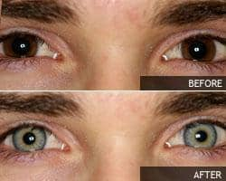 green-contacts-on-brown-eyes