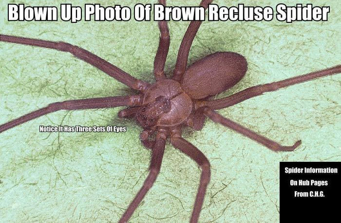 Here is a blown-up photo of a Brown Recluse Spider. These spiders are almost never bigger than a U.S. quarter and most are smaller.