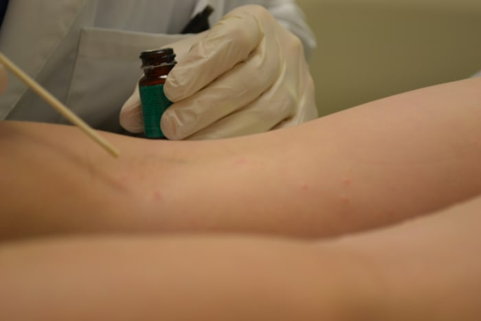 The dermatologist begins applying blister beetle juice to the molluscum contagiosum lesions.