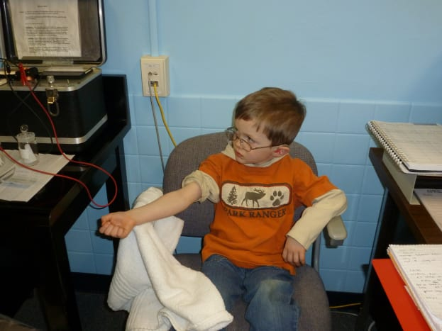 Preparing the arm: pilocarpine will be placed onto the collection site.