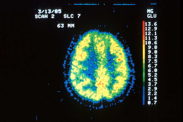 Position emission tomography (PET) of cerebral glucose utilization in a normal individual.  The gray matter appears yellow-red and the white matter is green-blue and uses less glucose.