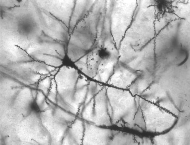 Nerve cells in the Hippocampus region of the brain