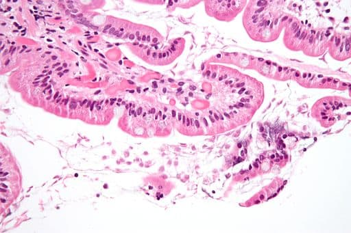 A flagellate is a type of protozoa. High magnification micrograph of a small bowel mucosa (duodenum) biopsy with giardiasis. H&E stain. Giardiasis is due to the flagellate protozoan