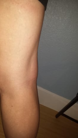 Baker's cyst in the back of my knee