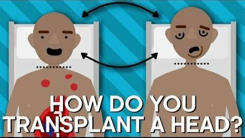 head_transplant