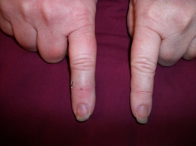 Injured index finger on left.  Circumference 5 mm greater at the base of the finger than the other index finger. Circumference 7 mm greater at the tip.