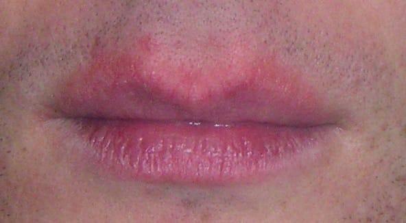 Redness (erythema) around the lips.