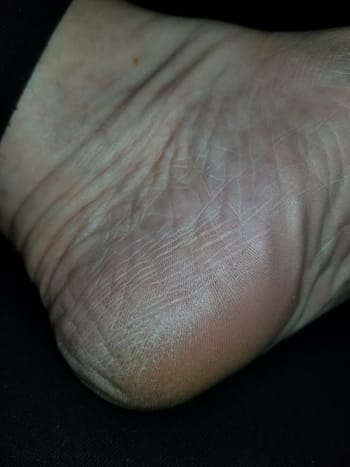 Before Rainbow Souffle Scrub. Very Dry and skin starting to crack