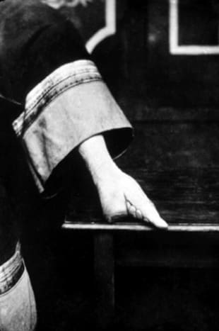 A bound foot was a hallmark of beauty. The actual foot was folded in half and tied down for years. This is the result that cannot be reversed.
