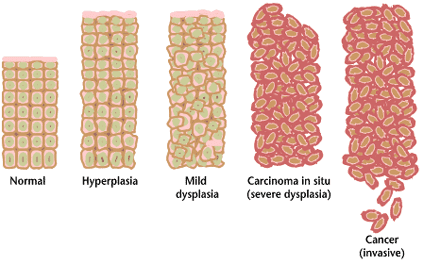 This shows the progression of what happens when cancer develops.