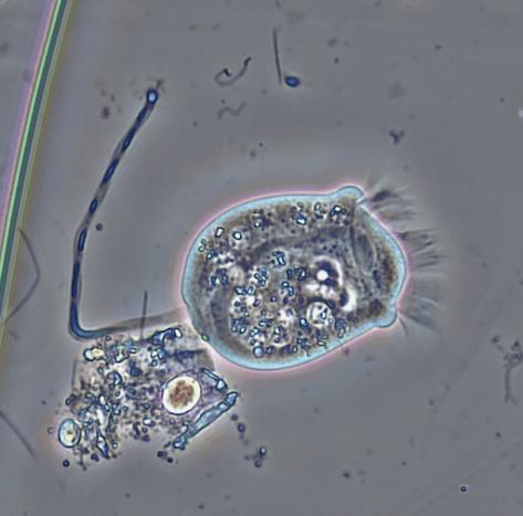 Ciliated Protozoa Vorticella
