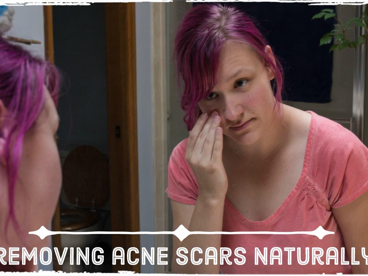 Did turn scar purple my why Scars