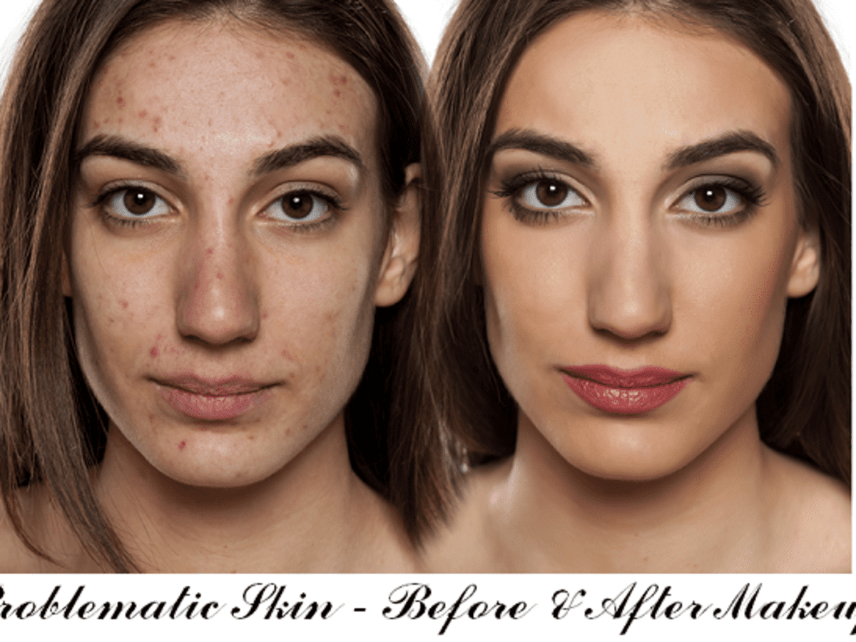 How To Apply Makeup If You Have Acne