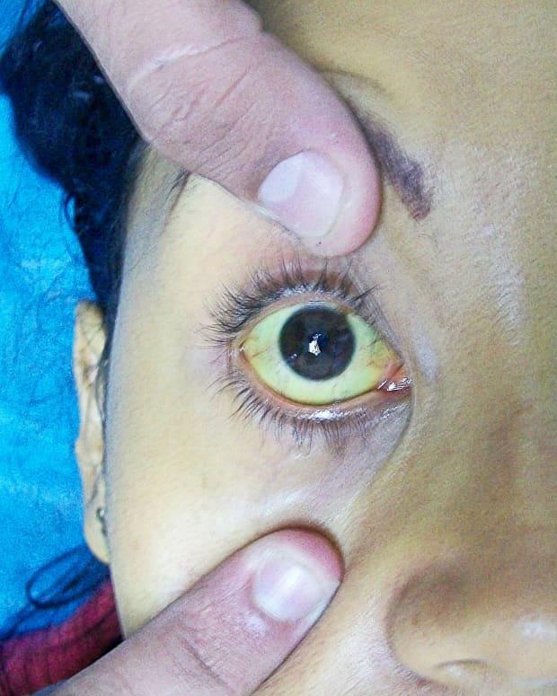 causes-of-jaundice-and-hyperbilirubinemia