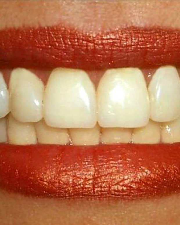 dreaming-of-teeth