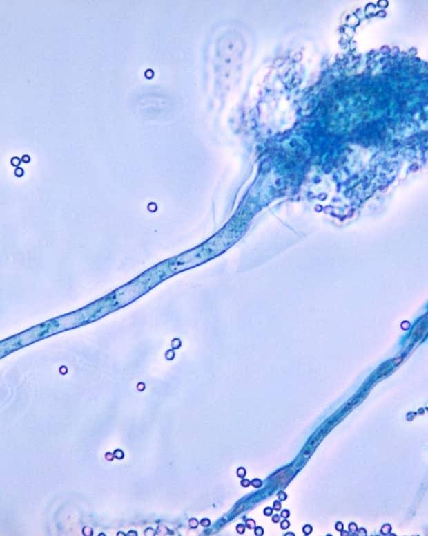 aspergillus-mold-aspergillosis-and-health
