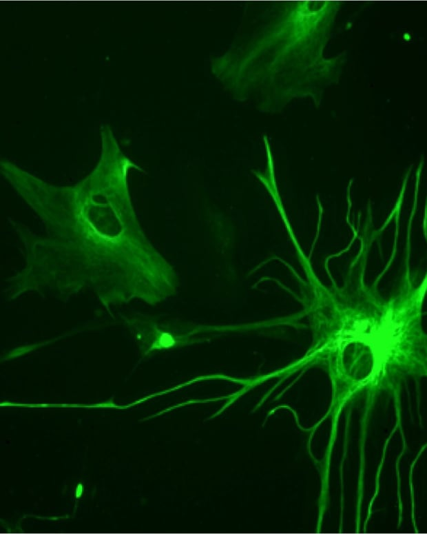 glial-cells-neurons-astrocytes-and-amyotrophic-lateral-sclerosis