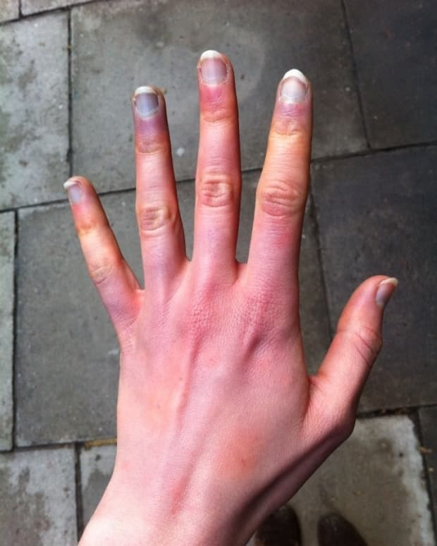 why-are-my-hands-turning-blue