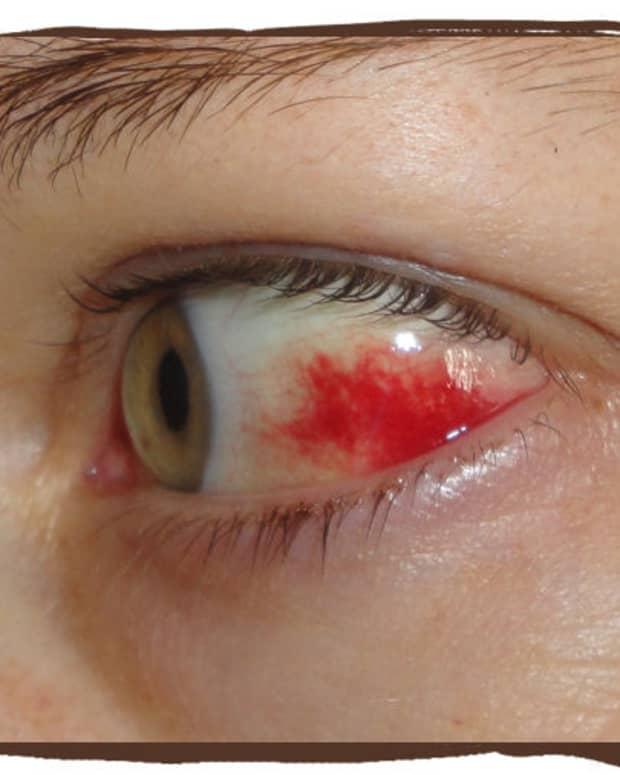 why-did-my-eye-turn-red