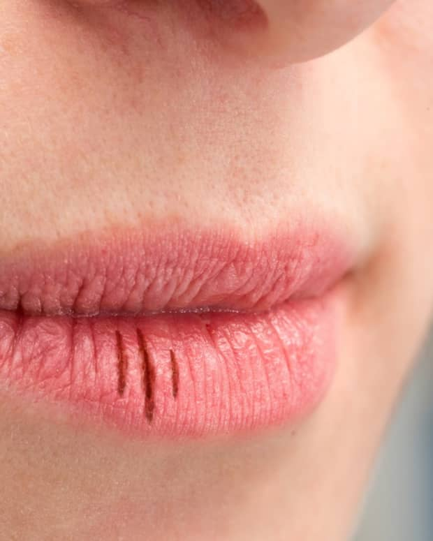dry-mouth-and-cavities-an-intimate-relationship
